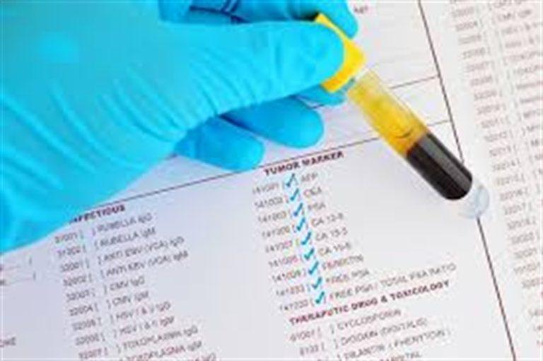 Tumore al pancreas, in Usa adolescente inventa il test