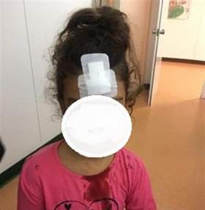 Porta danneggiata dell'ospedale, bimba si procura lunga ferita alla testa