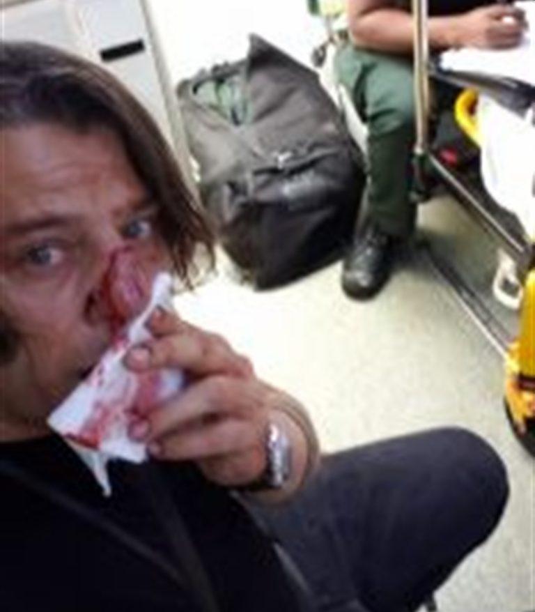"""Pestato  fotoreporter napoletano mentre documenta a Londra una manifestazione. """"Aggressione fascista"""""""